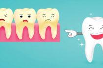 От какво зъбите пожълтяват?