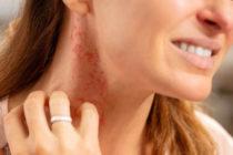 Симптоми и лечение на алергия към никел